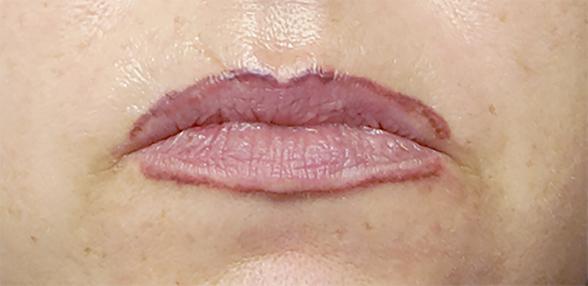 Frau mit ausgefranstem, altem Permanent Make-Up